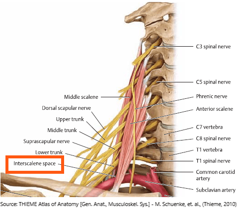 interscalene-space-can-cause-nerve-entrapment