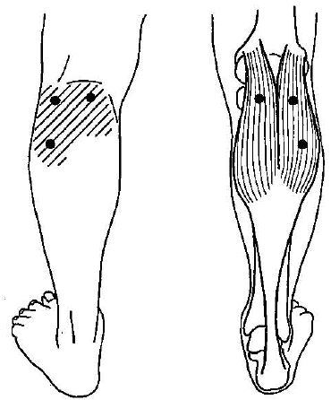 myofascial-trigger-point-in-gastrocnemius-muscle