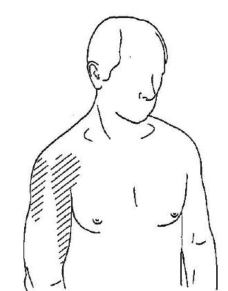 pain-pattern-myofascial-trigger-point-infraspinatus
