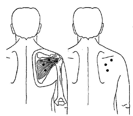 trigger-point-in-infraspinatus