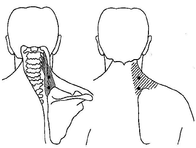 myofascial-trigger-point-in-levator-scapulae