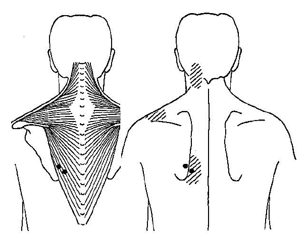 trigger-point-trapezius-muscle